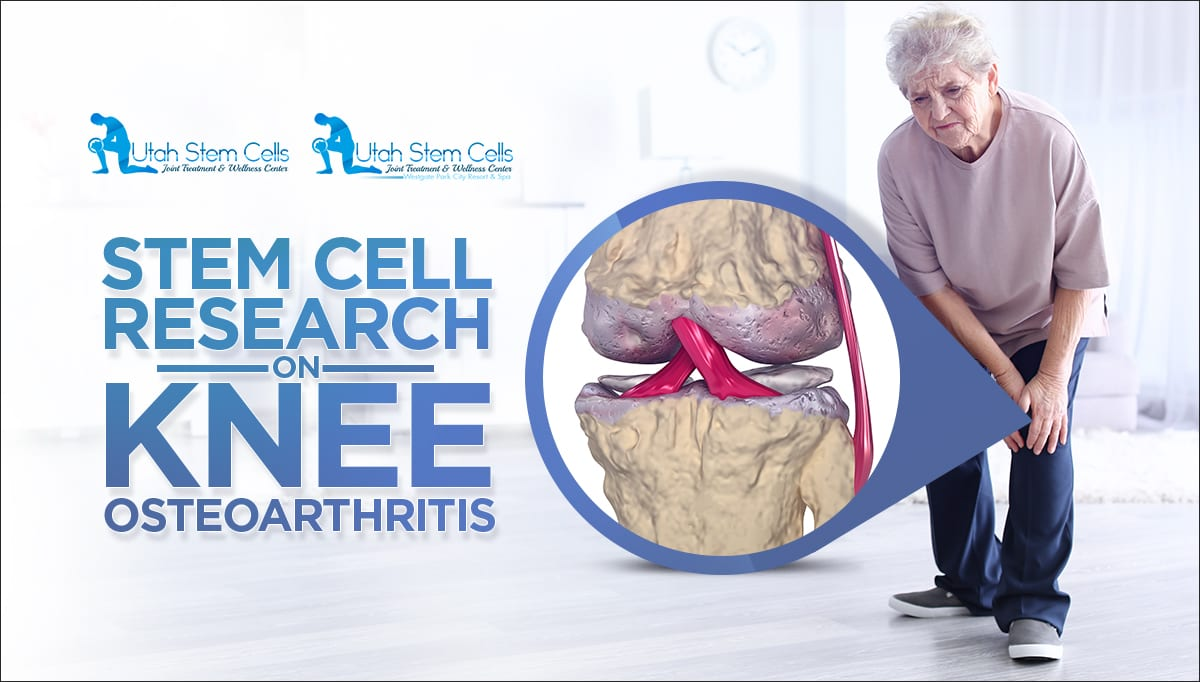 stem cell knee osteoarthritis