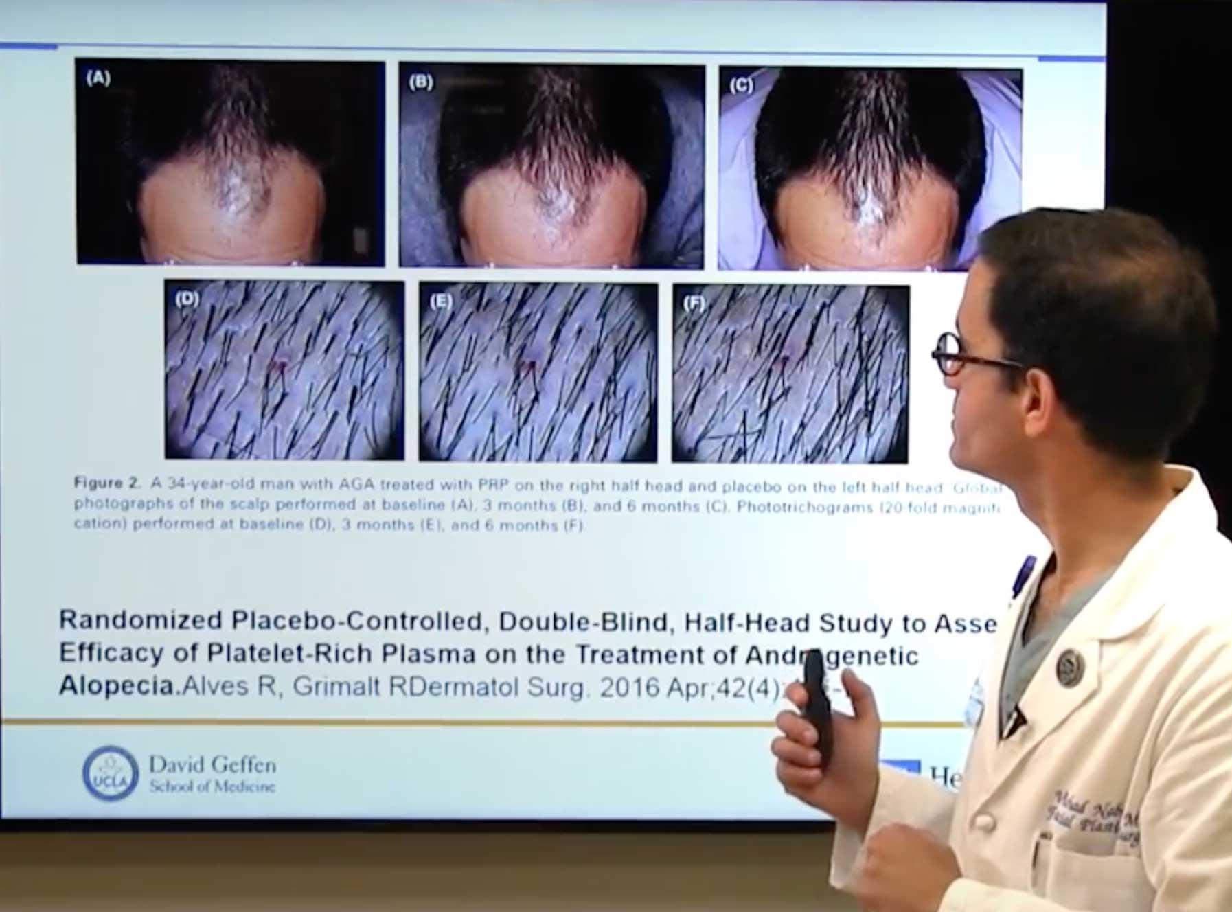 Stem Cell Hair Restoration | Utah Stem Cells